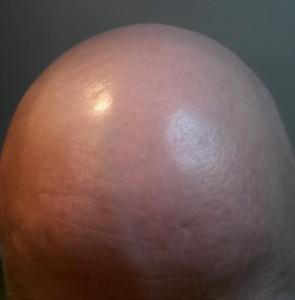George's egghead